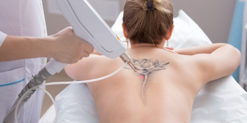 laser tattoo removal back
