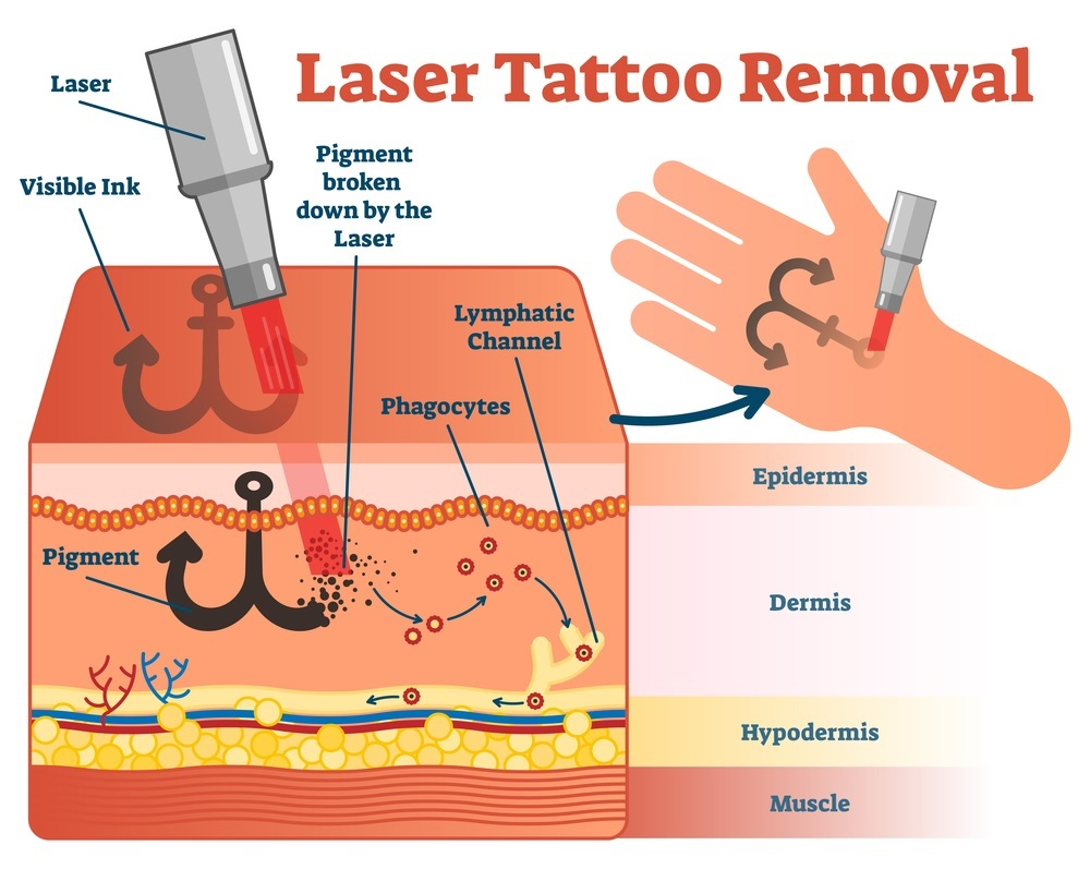 laser tattoo removal vector illustration diagram