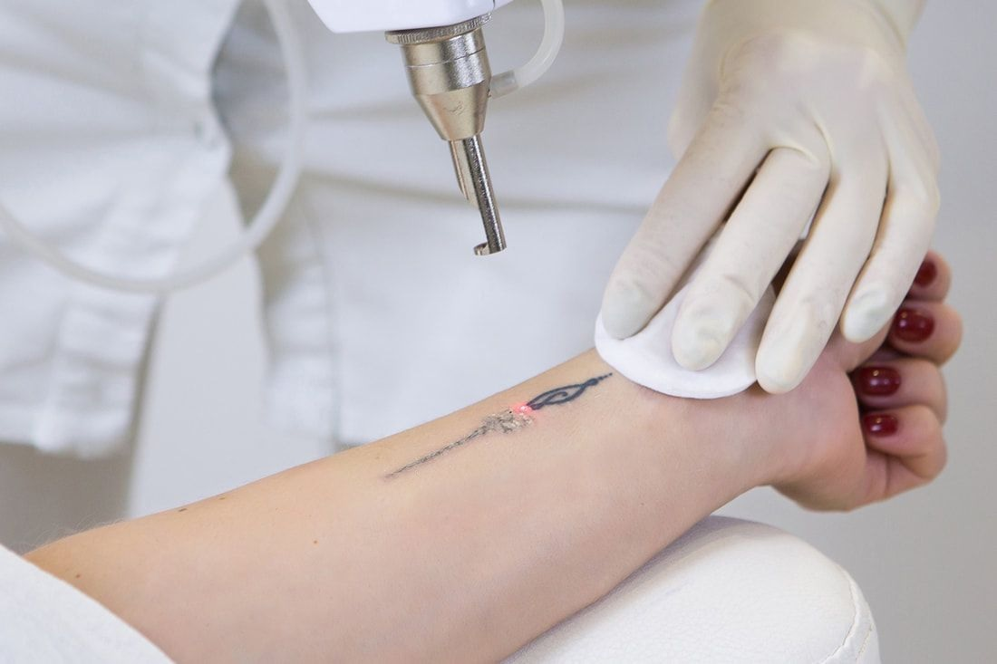 Best Lasers for Tattoo Removal